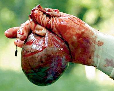 Органы для пересадки - самый ходовой товар