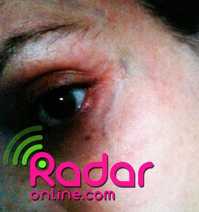 Суду были предъявлены снимки Оксаниного подбитого глаза...