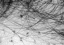 ПРОЦЕСС ПЕРЕСАДКИ: волосы растут, как на грядке