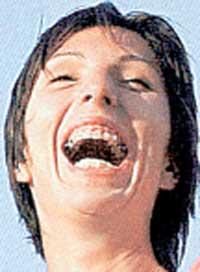 АНАСТАСИЯ МЫСКИНА: поставив брекеты, стала реже закрывать рот
