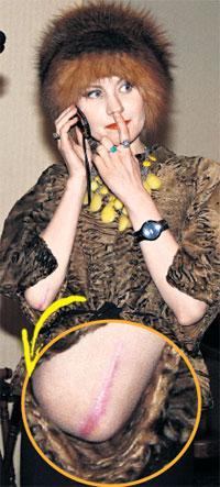 ШРАМ ОТ ОПЕРАЦИИ: в руку актрисы вставили штифт