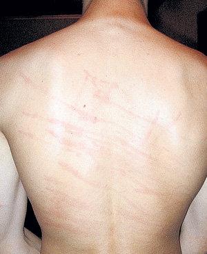 галерея царапины от ногтей на спине и плечах возник Лазурный