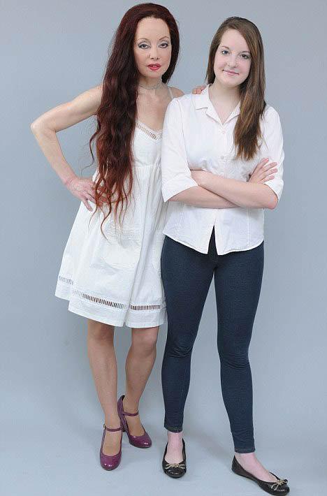 Чтобы расплатиться с пластическими хирургами, Нилен решила экономить на образовании своей дочери Рейчел и забрала ее из частной школы. Фото: Daily Mail